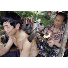 Китайские вакуумные банки и баночный массаж